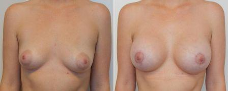 before and after breast augmentation | Richard H. Lee, MD Plastic Surgery