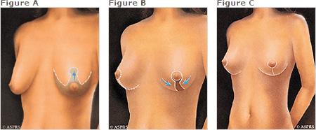 breast lift incisions diagram