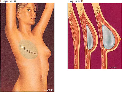 breast reconstruction with implants diagram | Richard H. Lee, MD Plastic Surgery