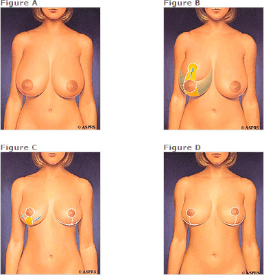 breast reduction incisions diagram