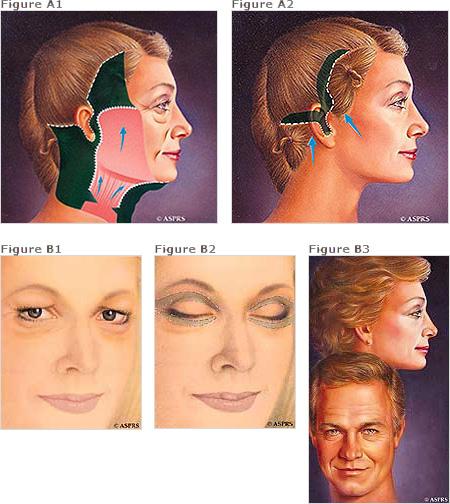 facelift incisions diagram