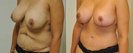 before and after mommy makeover surgery in Newport Beach| Richard H. Lee, MD Plastic Surgery